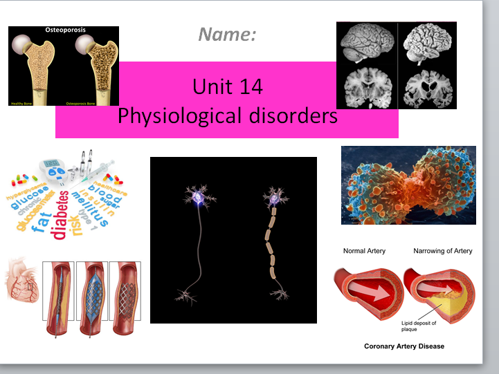 Health & Social Care (New Spec) Unit 14 Physiological Disorders P1 M1 D1 Lesson & Activity Booklet