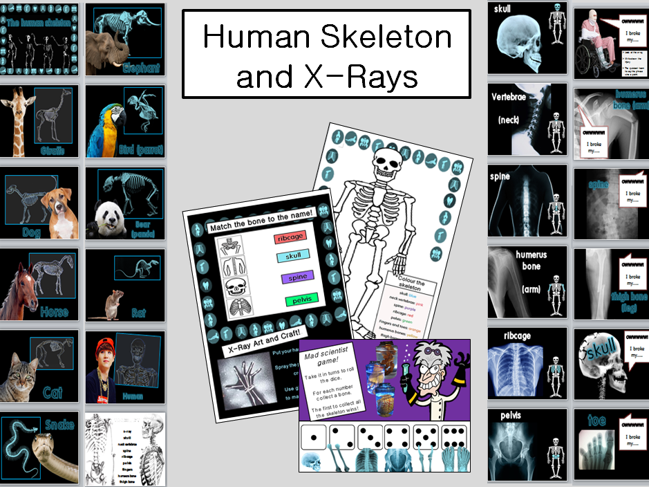 The Human skeleton and X-Rays. WHOLE LESSON and worksheets KS2 TEFL EFL