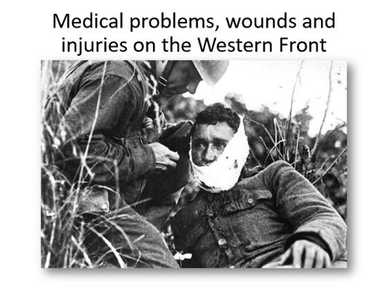Medical problems, wounds and injuries on the Western Front
