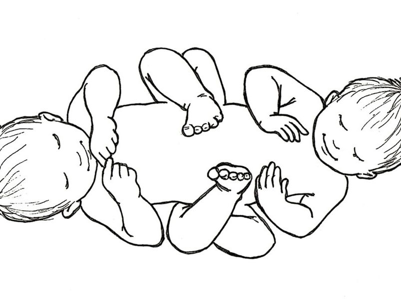Secondary RE Lesson starter from Ethical RE - Is life sacred? Is life priceless? Conjoined twins