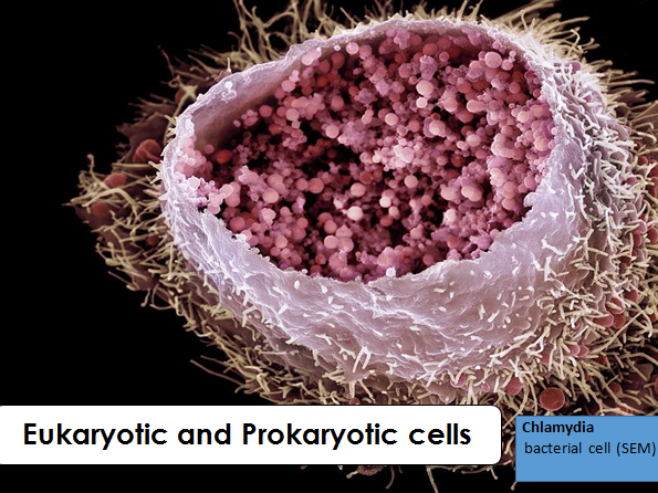 AQA GCSE B1.3 Eukaryotic and Prokaryotic cells (NEW SPEC)