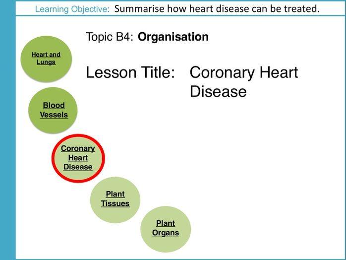 AQA GCSE: B4 Organisation: L3 Coronary Heart Disease
