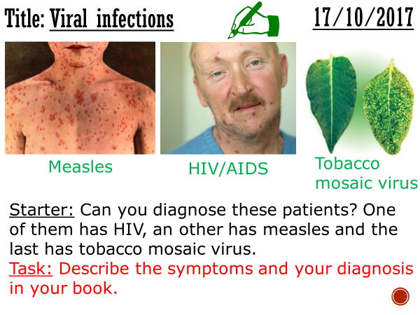 Viral infections - complete lesson (GCSE 1-9)