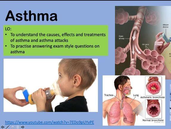 Anatomy and Physiology: Asthma