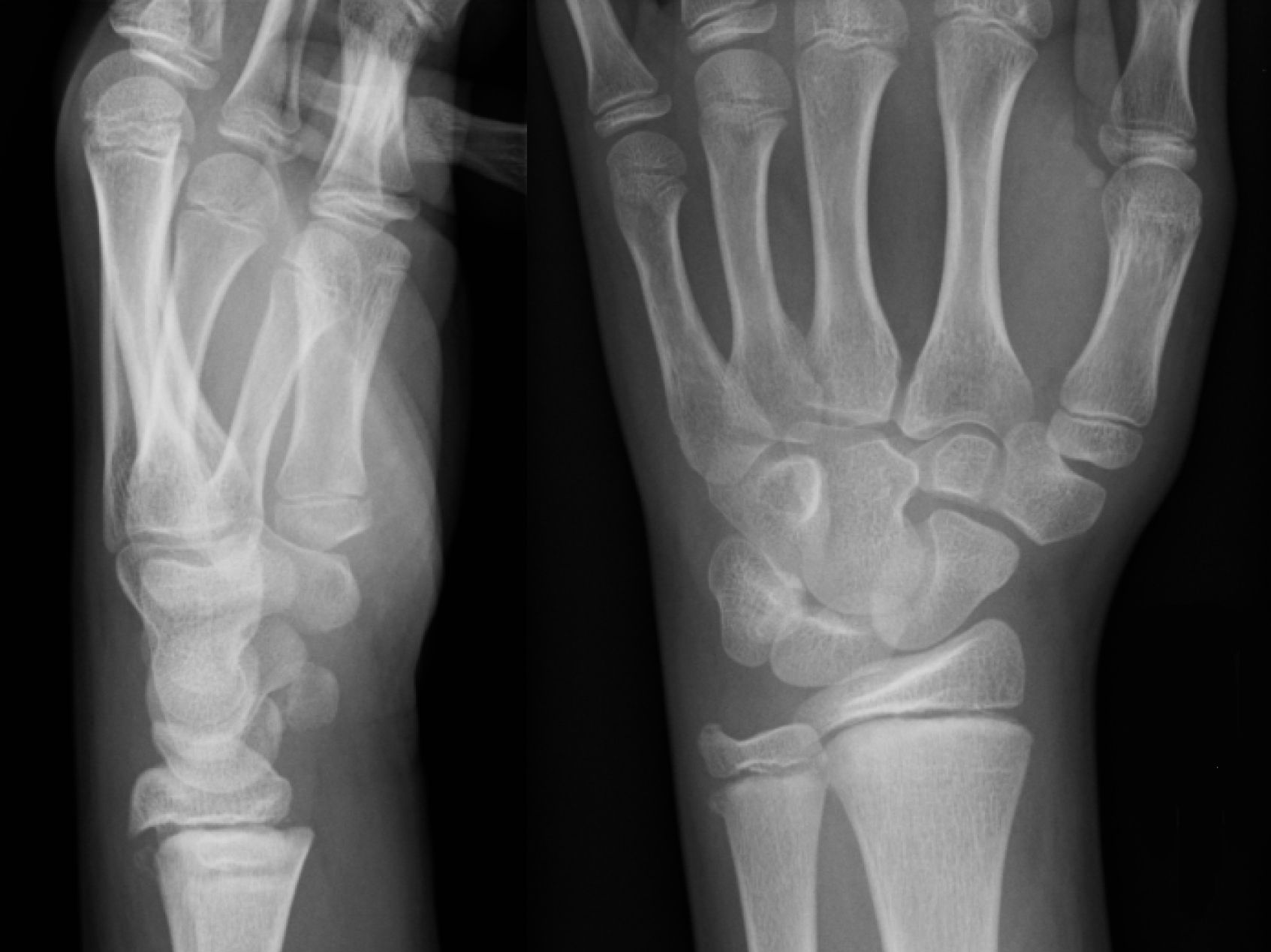 Bone and Bone Fractures