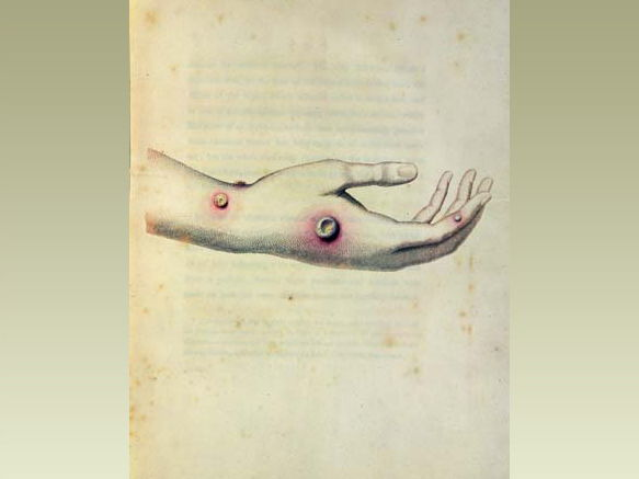 Medicine Through Time Innovative revision:
