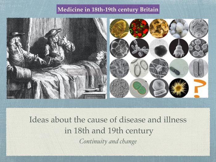 GCSE History of Medicine. 18th 19th Century. Ideas about the cause of illness.