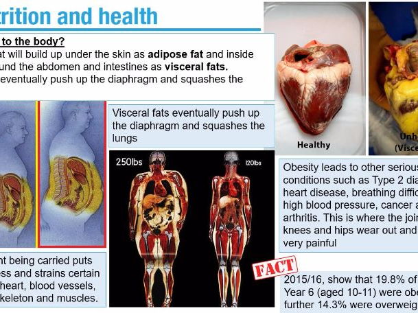 Diet and Health related illnesses