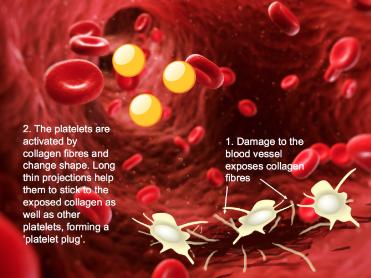 Explaining blood clotting for  A level biology (animated slides)