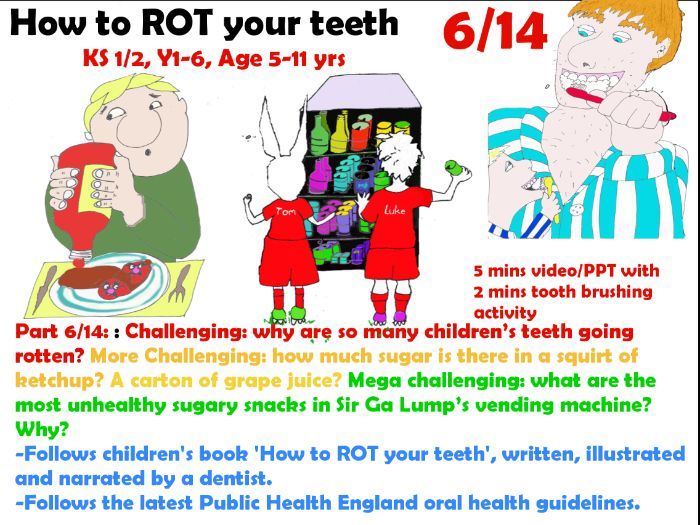 Teeth! 6/14 Hidden sugars, Sugar Buzz Snack Shack, 3D Tooth printer,  change4life foodscanner app,