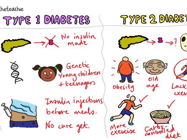 TREATING DIABETES Revision Video GCSE 9-1 Bio & Combined Science - AQA