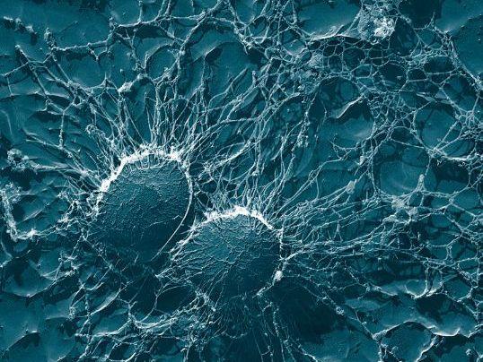 Drug testing & Bacteria experiment