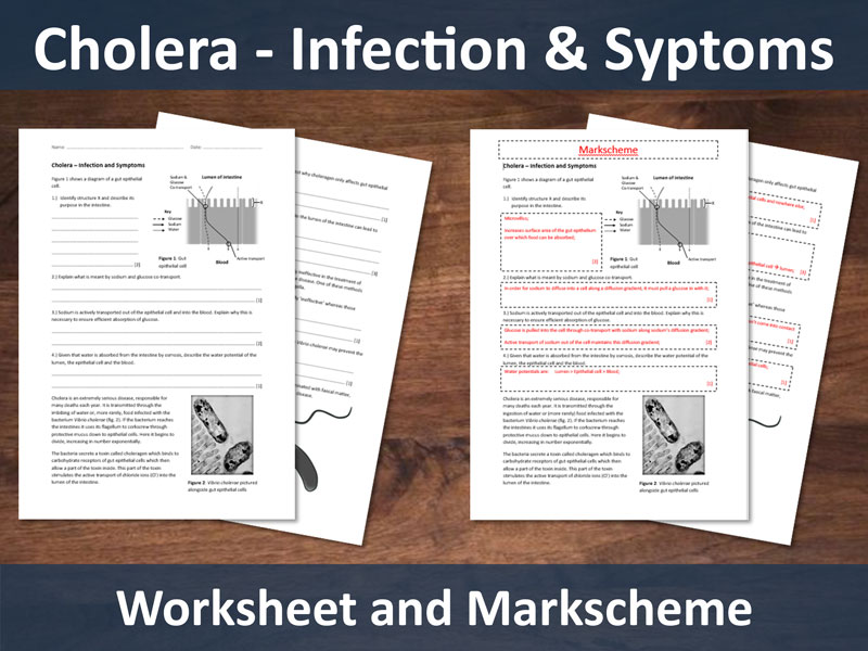 Cholera - Infection & Symptoms Worksheet with Markscheme (A level)