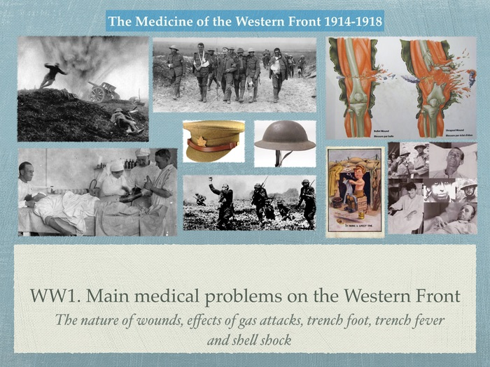 GCSE History of Medicine. WW1. The main medical Problems of the Western Front