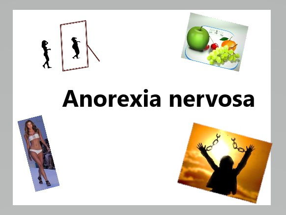 AQA Eating Behaviour Anorexia Nervosa-biological and psychological explanations