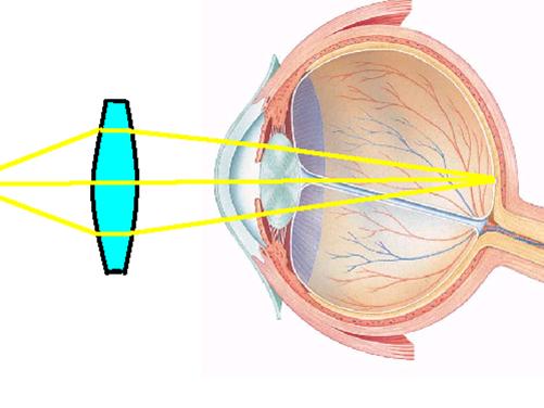GCSE P3 Physics - The Human Eye and Lenses