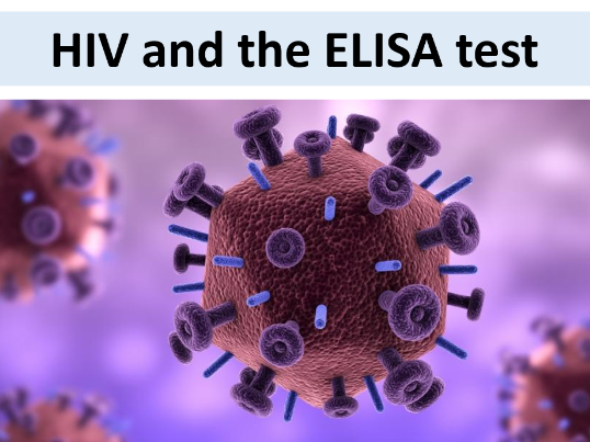 HIV and the ELISA test