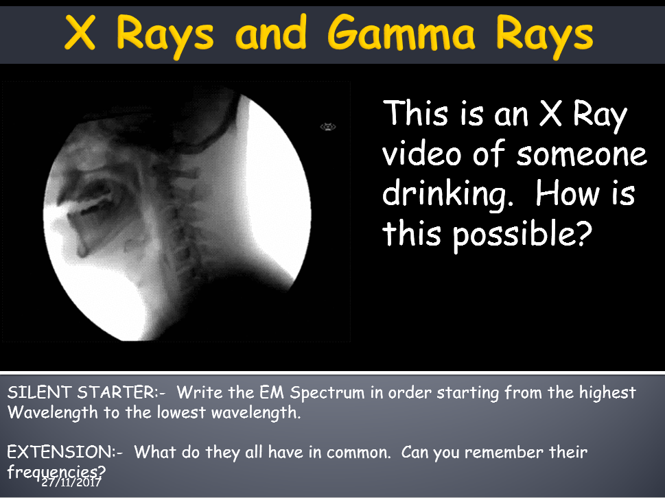 AQA Trilogy Science 9-1 Waves:-  X Rays and Gamma Rays