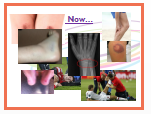 Cambridge National Sports Science Injury Revision Activities