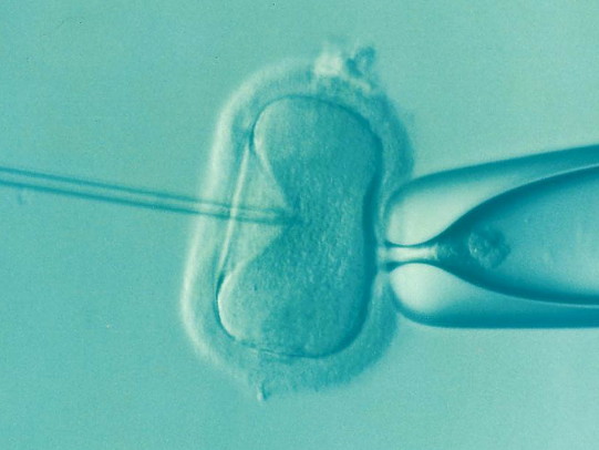 Treating Infertility - Extended Writing Task