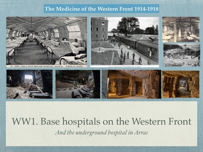 GCSE History of Medicine. WW1. Base Hospitals on the Western Front