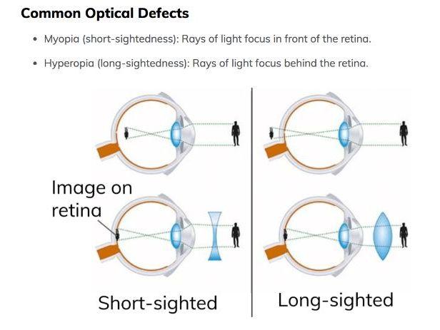 myopia diagram gcse