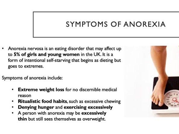 Edexcel Psychology A-level Anorexia