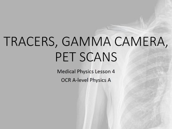 Tracers, gamma camera, PET (A-level Medical Physics)