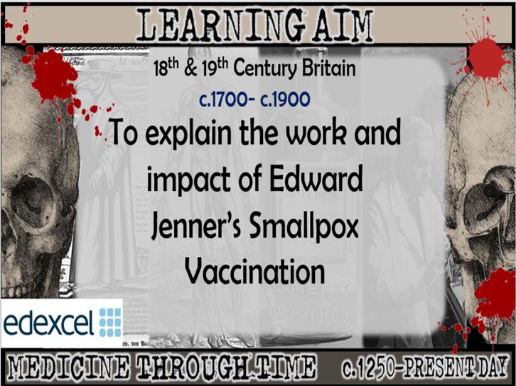 GCSE History Edexcel: Medicine in Britain - Edward Jenner Smallpox Vaccination (Lesson 25)
