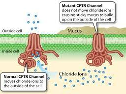 Cystic Fibrosis and Chloride Ions