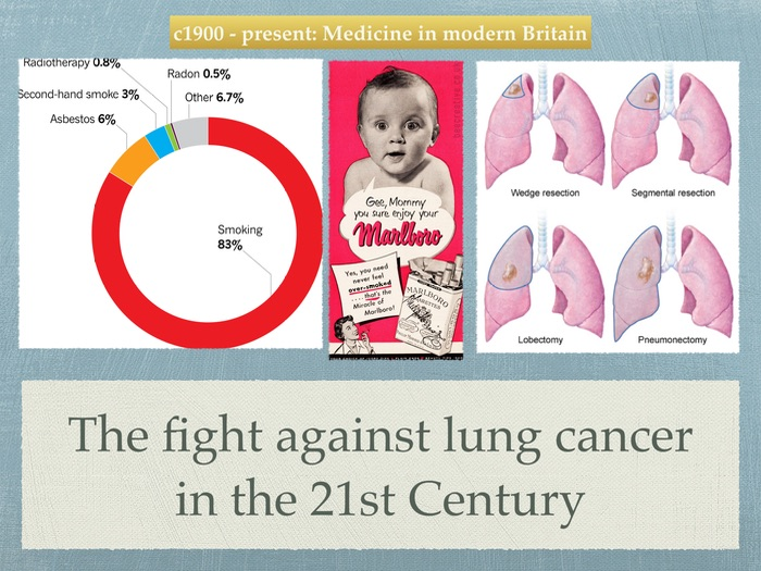 GCSE History Medicine. 20th Century. The fight against lung cancer