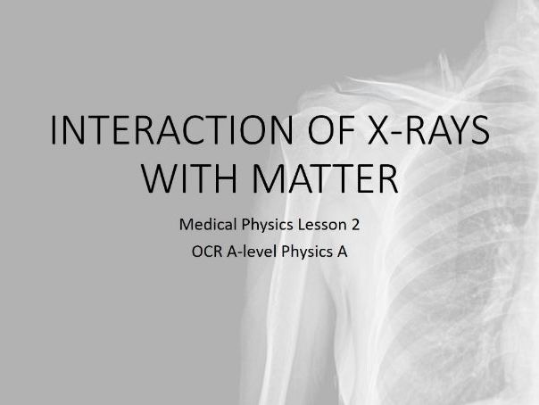 Interaction of X-rays with matter (A-level Medical Physics)