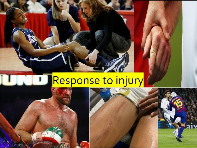 BTEC First Sport (level 2) - Unit 10 - Injury and the Sports Performer