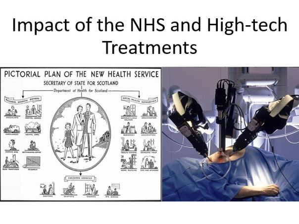 Impact of the NHS and High-tech Treatments