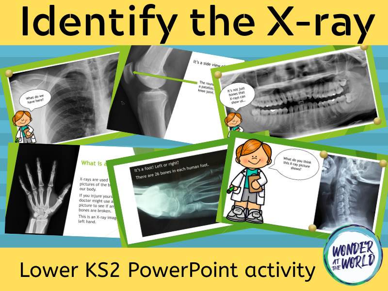 Identify the X-ray PowerPoint activity