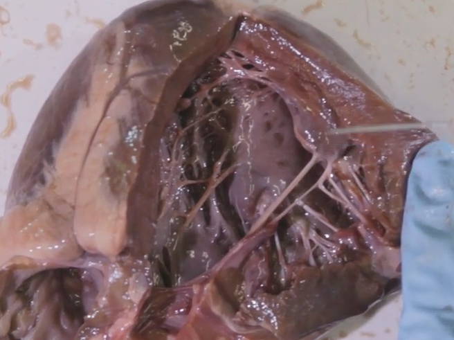 Heart Dissection - The external and internal structure