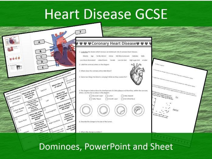 Coronary Heart Disease Presentation, 2 Sided Sheet and Dominoes - GCSE Biology
