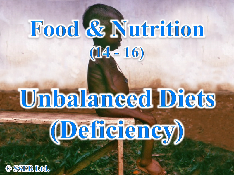 1.4 Unbalanced Diets (Deficiency)