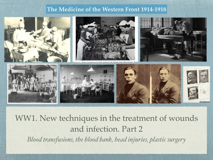 GCSE History of Medicine. WW1. New Techniques of treatment of wounds and infection. Part 2